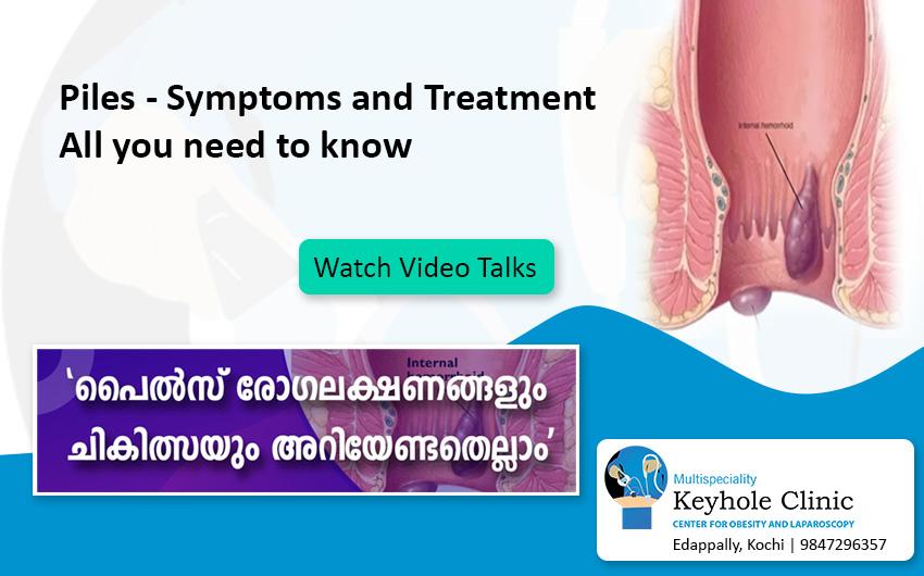 Piles - Symptoms, Treatment
